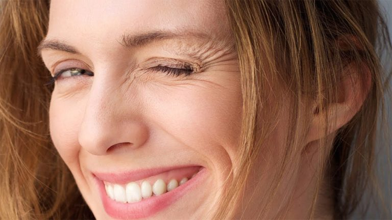How To Get Rid Of Smile Lines Around Eyes
