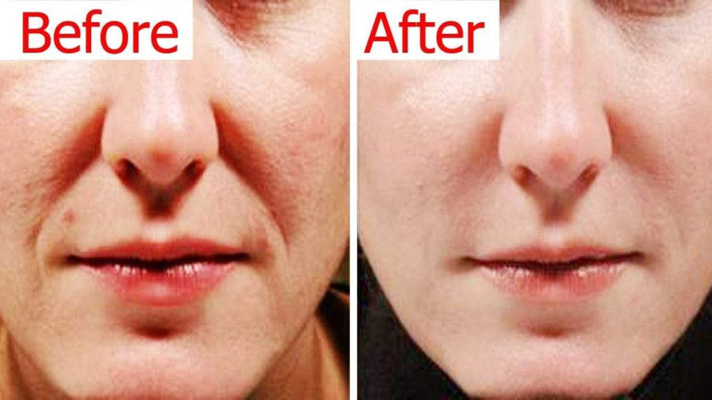 How To Get Rid Of Smile Lines Naturally