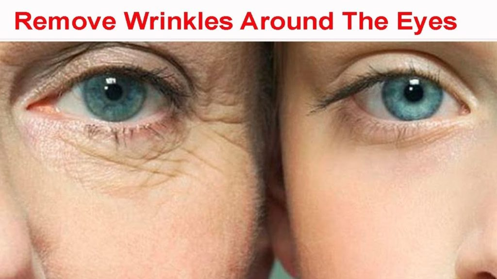 How To Get Rid Of Smile Lines Under Eyes
